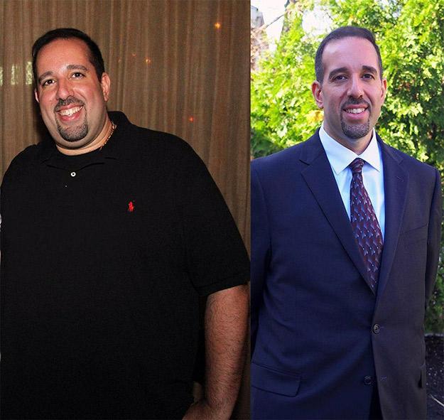 antes y después de